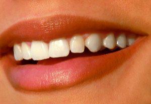 Zahnarzt Düsseldorf - Ästhetisches Lächeln Zähne