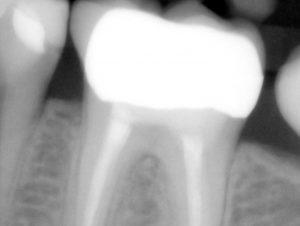 Zahnarzt Düsseldorf - Endodontie Zahn Wurzelbehandlung